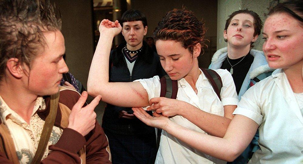 Девушка демонстрирует побои на руке