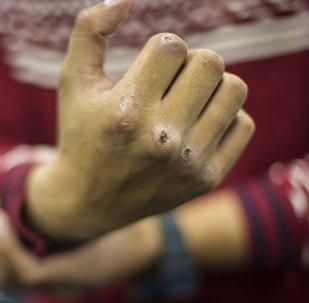 Мужчина показывает разбитый кулак